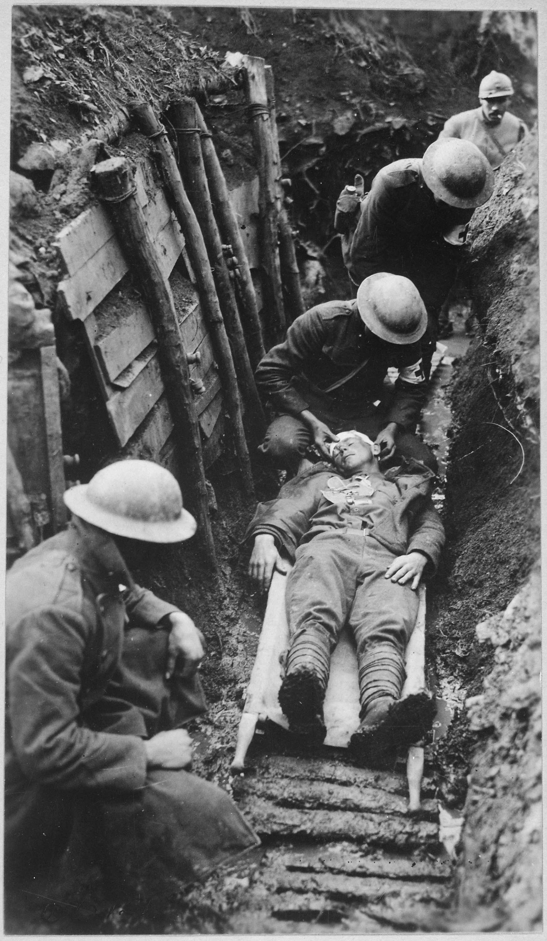 Marine_receiving_first_aid_before_being_sent_to_hospital_in_rear_of_trenches._Toulon_Sector_France._03-22-1918_-_NARA_-_530724.jpg